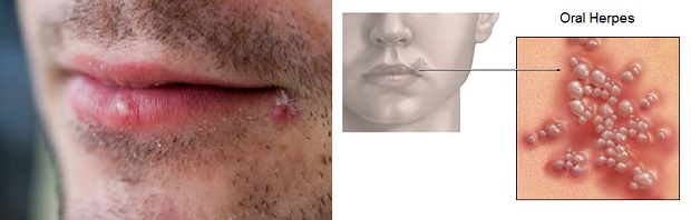 Are All Cold Sores A Form of Herpes?